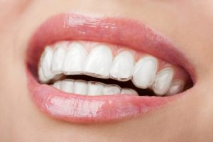 Invisalign Teen Wexford