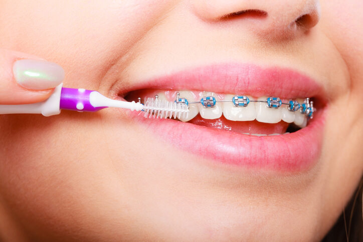 Can Braces Cause Bad Breath?