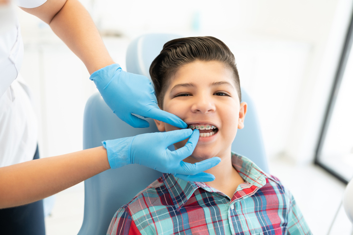 Why Putting Off Early Treatment of Misaligned Teeth is a Bad Idea